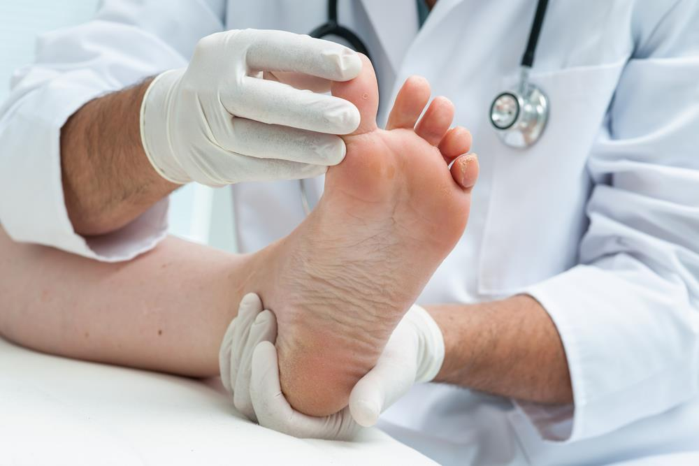 3 Things You Need to Know About Fungal Nail Infections